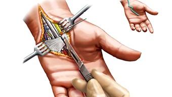 game thủ, bệnh game thủ, tràn khí màng phổi, viêm mê đạo, pro player, hội chứng đường hầm cổ tay, hội chứng chèn ép thần kinh trụ ở khuỷu tay